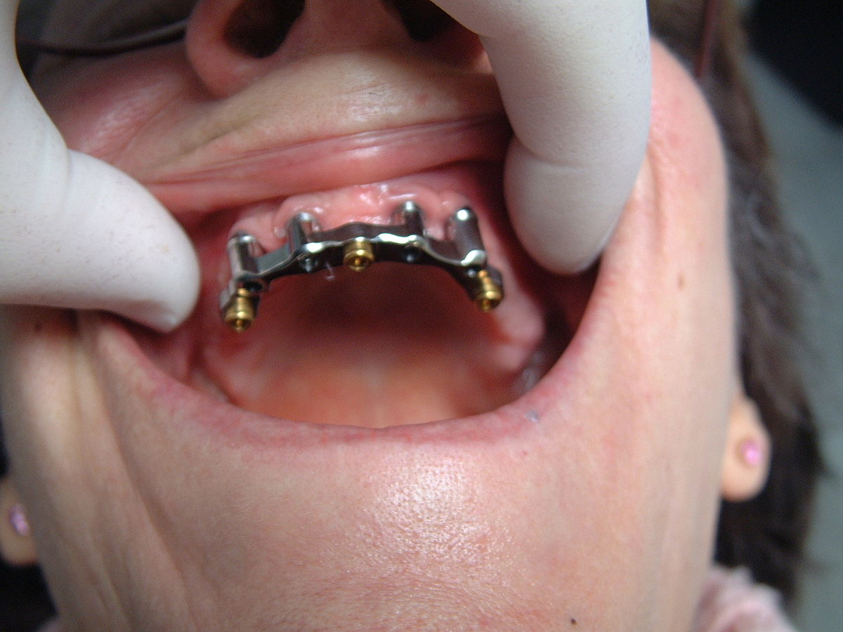 Implant dentaire : combien de types existe-t-il ?